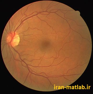 Retinal Images